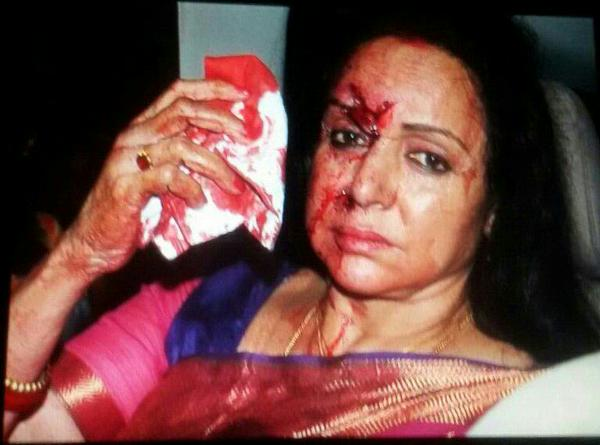 Hema-malini-accident