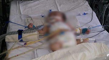 11 month old baby left critical after she was raped for 2 hours